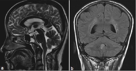 Figure 2 Sagittal T2 weighted (a) and coronal fluid-attenuated inversion recovery images (b) showing hyperintense lesion in nodule
