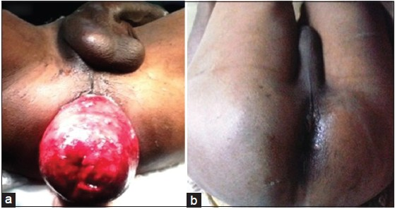 Figure 1 (a) Complete, irreducible and edematous prolapse of the rectum (b) reduction achieved following manual digital method after conservative approach using local sugar application