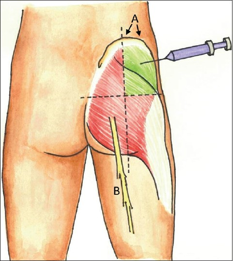 Are our intramuscular injections nerve-friendly? What are we